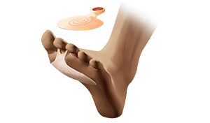 MetataRsal inseRts witH ReinFoRceD RinG PV220
